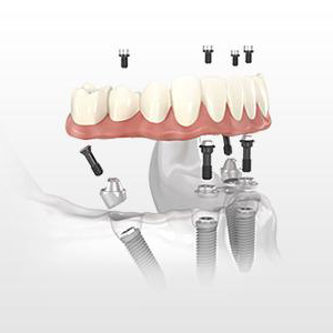 teeth in one day illustration of dental implants