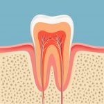 family dentistry root canal