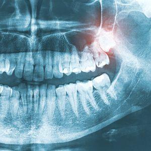 Dental Emergency xray