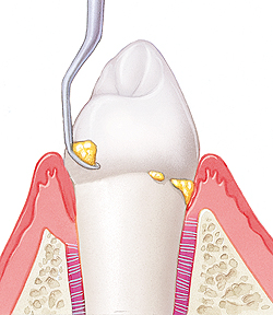"Image illustrating a periodontal cleaning, which can also be called a ""deep cleaning."" You can avoid needing this type of cleaning by having good oral hygiene and by having routine dental cleanings at your Lincoln, NE dental clinic."